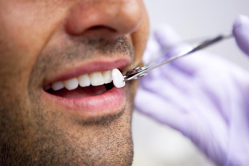 fatete-dentare-Clinica-Stomatologica-Denti-Dent-2