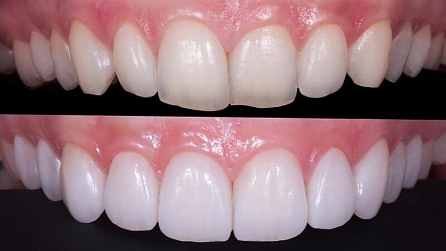 fatete-dentare-Clinica-Stomatologica-Denti-Dent-3